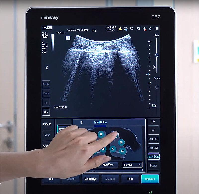 lung ultrasound scan using smart b line mindray TE7 to screen for covid-19