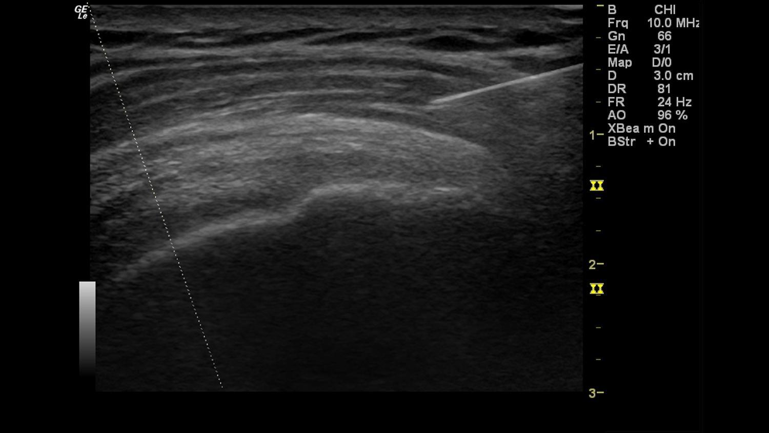 logiq e shoulder injection with b steer clinical
