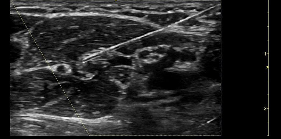 Nerve block image Auxillary nerve 12L RS clinical