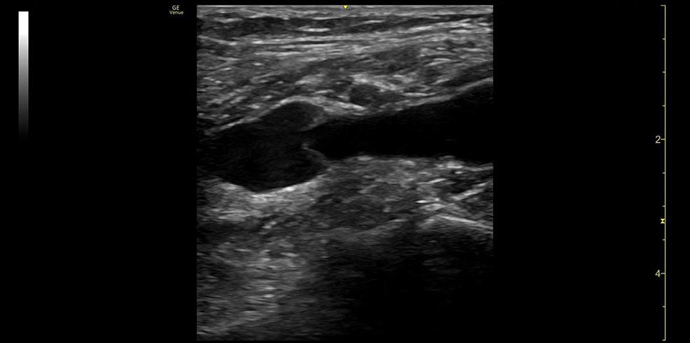 Popliteal Vein 9L RS clinical