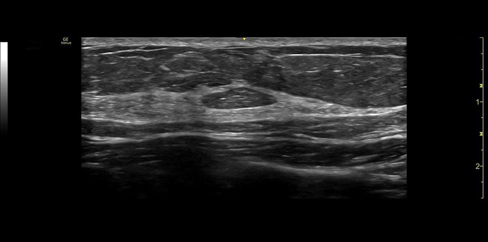 Popliteal Vein ML6 15RS clinical