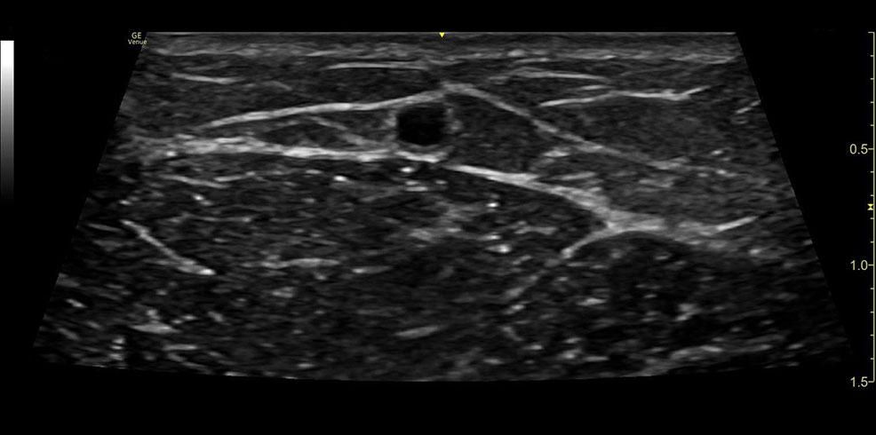 Vascular Access imaging Cephalic vein L8 18i RS clinical