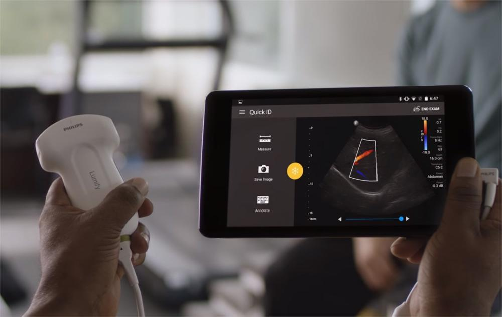 philips lumify ultrasound probe for iphone android 02
