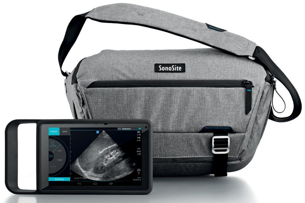 03 sonosite iviz ultrasound machine